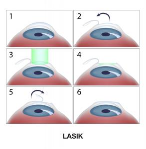 L'opération LASIK en étapes
