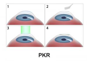 L'opération du Laser-de-surface-PKR en étapes